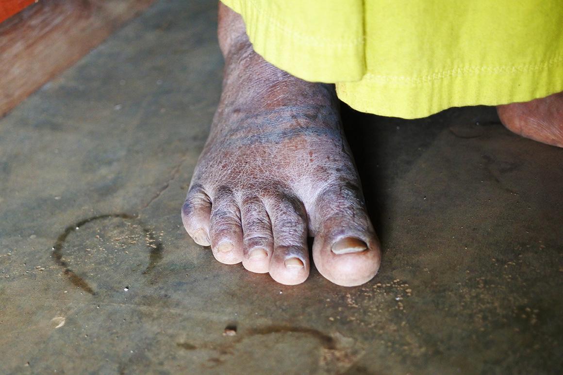 トダ族の老女に見られる入れ墨