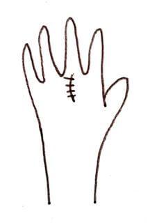 縫い跡のある手